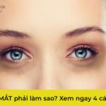 4 cách điều trị thâm mắt
