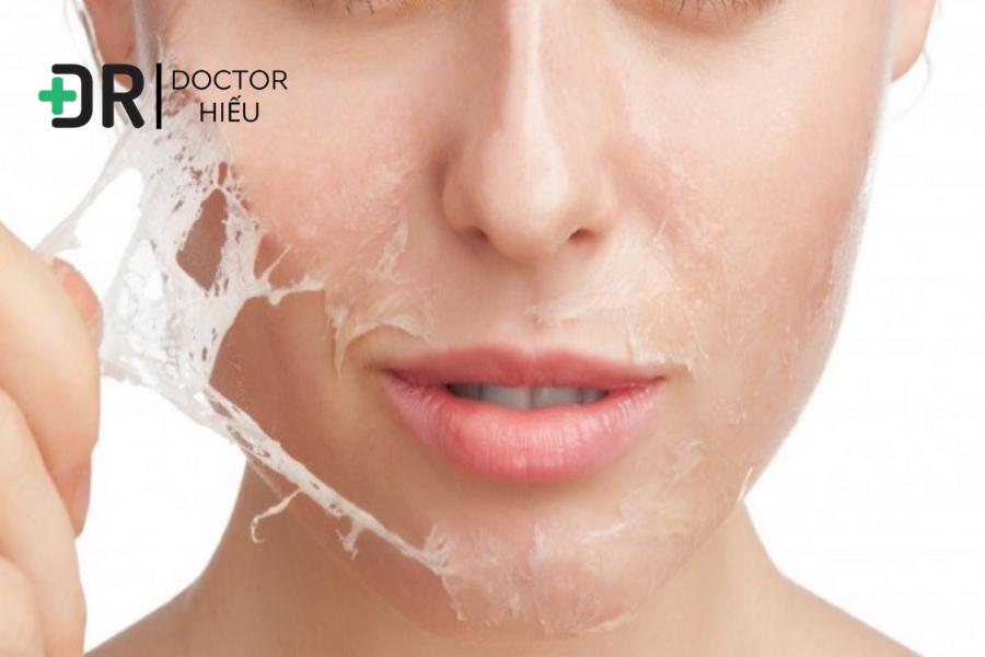 Bạn có đang sử dụng AHA - BHA để điều trị mụn ẩn?