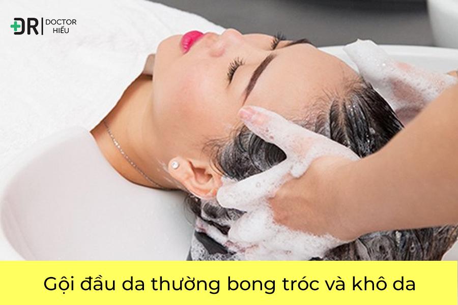 Gội đầu da thường bong tróc và khô