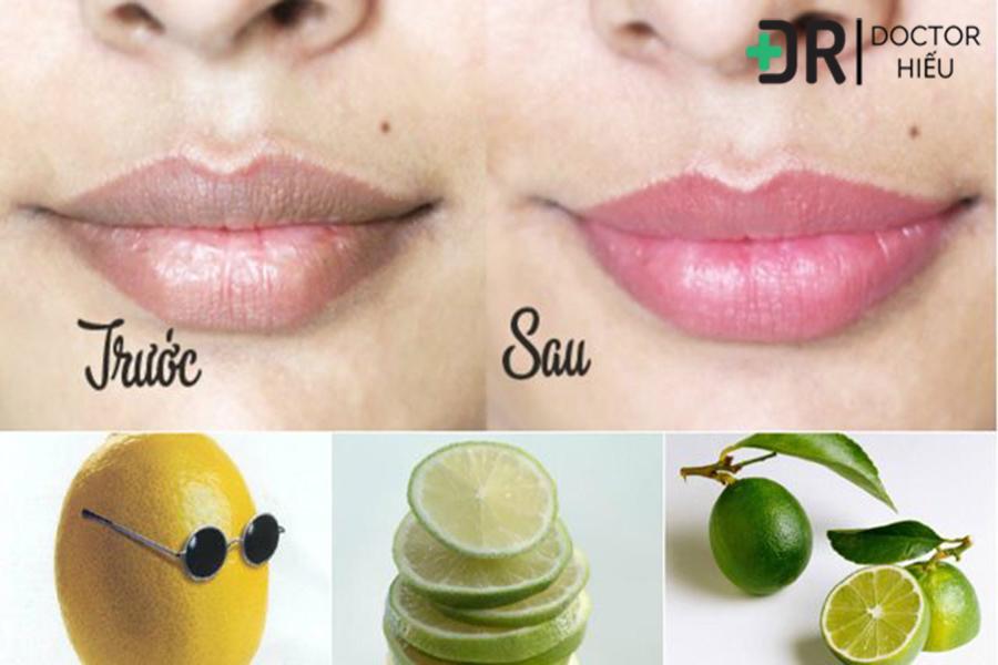 tẩy da chết môi, trị thâm môi, cách trị thâm môi
