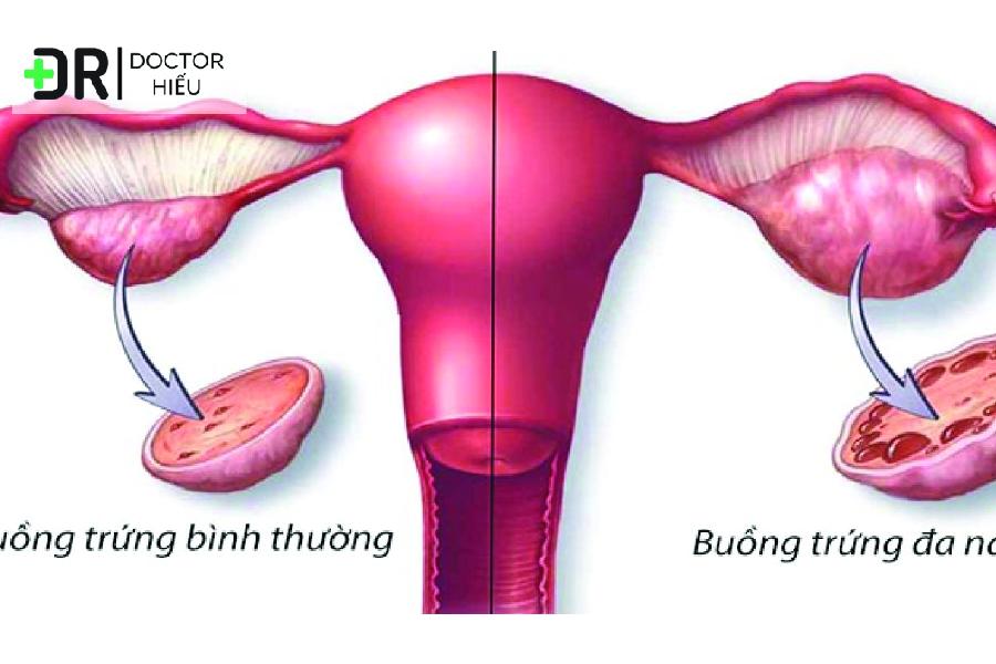 Estrogen, mụn nội tiết là gì - cách trị mụn