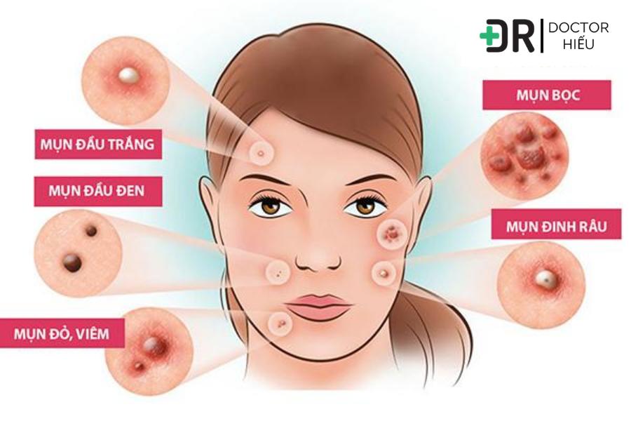 retinol là gì , differin trị mụn, trị mụn hiệu quả
